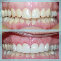#beforeandafter #dental #sanmarcosdentist #smile