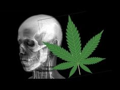 Heavy Early Marijuana use Bad For Brain Cells - Daily Two Cents