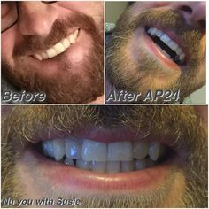 Look who took some AP24 Whitening Flouride Toothpaste away with him  Look at them TEETH what a fabulous smile and difference!! Message me to order yours!! @seandoman  #offshore #offshorelife #oillife #teethwhitening #whiteteeth #smile #rigger #casing #teeth #saycheese by susiebumboozie
