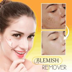 US$ 39.98 - Instant Blemish Removal Gel - m.7daa.com Mole Removal, Blemish Remover, Acne Blemishes, Face And Body, Beauty Skin, Body Care, Moisturizer, How To Remove, Skin Care