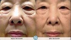 Before and After using NeriumAD - Real Results! dmcarrere.theneriumlook.com
