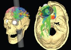Anyone who has studied psychology or neuroscience will be familiar with the incredible case of Phineas Gage, the railroad worker who had a metre-long iron rod propelled straight through his head at high speed in an explosion. Gage famously survived this horrific accident, but underwent dramatic personality changes afterwards.