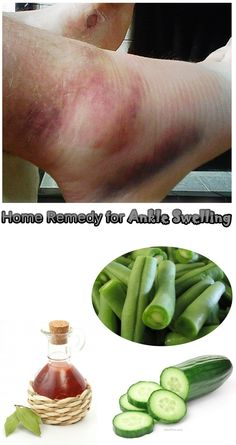 Home Remedies for Ankle Swelling