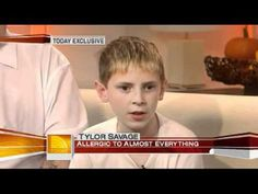 '2007' The boy who is allergic to almost every food - TODAY Health