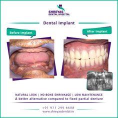 Looking for something that would help in getting permanent teeth in 3 days? Dental Implant is the solution.  #dentalimplant #InstantDentalImplant #TeethIn3Days