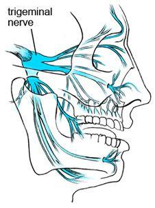 Trigeminal Nerve - Trigeminal Neuralgia