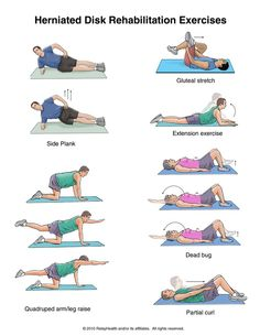 Herniated Disk Exercises #health #fitness for the hunby