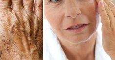Mörkare pigmentfläckar på huden är ett vanligt signalement på att du börjar komma upp i ålder. Vissa får det inte alls medan andra drabbas hårt. Det är dock få som vet