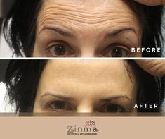 Xeomin injections make you look younger.  You want to look and feel younger call us @703 992 9815 or email us @info@zinniaaesthetics.com #neuromodulators #xeomin #botox #dysport #wrinklefree Look Younger, Your Skin, Anti Aging, Believe, That Look, Told You So, Faith