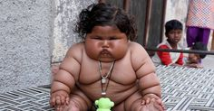 Eight-month-old Indian baby weighs the same as an average four-year-old