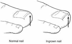 Ingrown Toenails Causes   Ingrown Toenails Treatment and Prevention   The Foot Specialist   Medfoot.com
