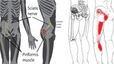 If you suffer from piriformis pain, it can be very frustrating. It manifests as hip pain while sitting, numbness that never seems to go away, pain that radiates down your hamstring and spasms that shoot down the back of your leg from your hip. Sciatic Nerve, Nerve Pain, Leg Pain, Back Pain, Leg Spasms, Leg Muscle Spasms, Thoracic Spine Mobility, Hip Flexor Pain, Hip Injuries