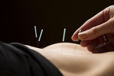 Acupuncture and moxibustion relieve irritable bowel syndrome (IBS) and outperformed drugs to deliver superior patient outcomes. Ibs Relief, Pain Relief, Acupuncture, Pelvic Inflammatory Disease, Ovarian Cyst Treatment, Hormone Replacement Therapy, Irritable Bowel Syndrome, Holistic Healing, Holistic Medicine