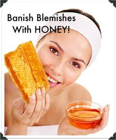 Banish zits and more, with some great at home DIY remedies with honey by Barbie's Beauty Bits, of The Lucky Magazine Community