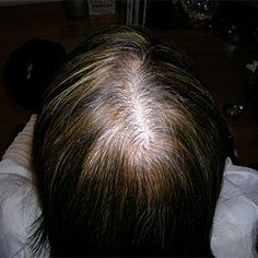 How To Get Rid of Female Pattern Baldness