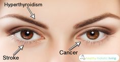 This article is shared with permission from our friends at articles.mercola.com. Your eyes are a unique window into health. Yahoo Health has assembled a list of 14 things your eyes can tell you about your entire body. Here are some of them: (adsbygoogle = window.adsbygoogle || []).push({}); Disappearing Eyebrows When the...More