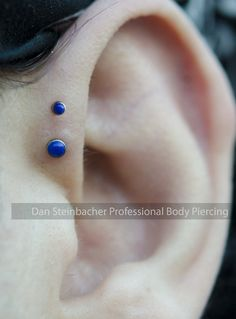 Healed double forward helix piercing I did a few months ago. 2mm and 3mm lapis cabochon ends from NeoMetal Titanium Body Jewelry.