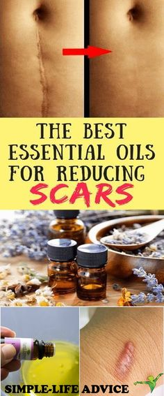 The Best Essential Oils For Reducing Scars: Helichrysum carrot seed frankincense lavender rosemary Sandalwood Neroli Mandarin (tangerine) Lemon Teatree chamomile clary sage; Doterra Essential Oils, Young Living Essential Oils, Essential Oil Blends, Antibacterial Essential Oils, Doterra Blends, Clary Sage Essential Oil, Essential Oils For Hair, Natural Cures, Natural Health