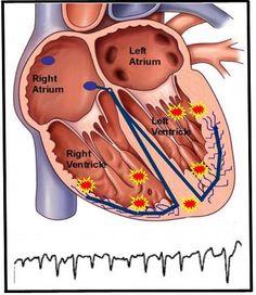 Ventricular Tachycardia (VT) - Washington Heart Rhythm Associates