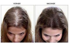Die 12 Besten Bilder Von Haare Beauty Hacks Hair Growth Und