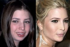 20 Celebrity Before-And-After Plastic Surgery Disasters – Page 11 Bad Celebrity Plastic Surgery, Bad Plastic Surgeries, Plastic Surgery Gone Wrong, Facial Cosmetic Surgery, Celebs Without Makeup, Nose Surgery, Celebrities Before And After, Glowy Makeup, Ageless Beauty