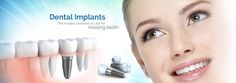 For Best #dentalimplants in #Chandigarh ,..Call at +91-,98155-02453 you will get a right solution. www.dentalbhaji.com #dentalimplants #dentalimplant #dentalimplantschandigarh #Dentalclinicmohali #Dentalimplantshospitalmohali