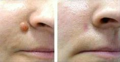 A verruga é uma pequena elevação na pele, geralmente macia.
