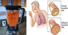 Carrots: The Natural Food to Remove Cough and Phlegm From Your Lungs (Recipe included)