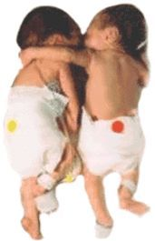 """Article: """"The Rescuing Hug"""" from twin sister stabilizes newborn struggling to survive."""