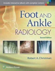 Foot and ankle radiology: http://kmelot.biblioteca.udc.es/record=b1528052~S1*gag