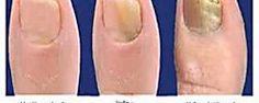 Apunta la receta para preparar tu propio peeling y conseguir una piel perfecta. ¡Notarás sus efectos desde el primer día!