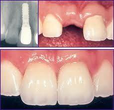 Maintain your healthy teeth: