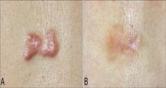 Keloid is a skin defect with glossy and pink surface different from the regular skin color. Keloids differ from scars and what is more important they don't disappear with time, so you need to apply some treatments in order to get rid of them. Instead of using chemicals, this natural remedy can surely help. Tea tree oil is quite beneficial against keloids. How Useful Is Tea Tree Oil In Treating Keloids These skin bumps are not painful but they can be itchy if you touch them very often. They…