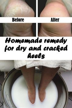 Homemade remedy for dry and cracked heels
