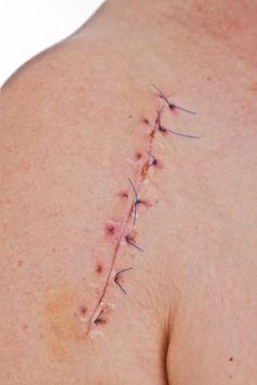 machine after shoulder surgery