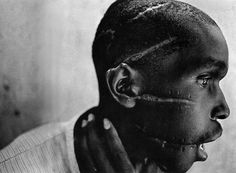 A Rwandan boy left scarred after being liberated from a death camp.