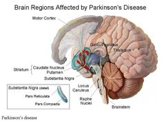 Parkinson's Disease - We are here for you with latest trends, updates, news, gossips, events, movie, tv shows, celebrities