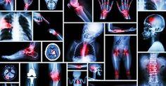 I dolori, principalmente muscolari e alle articolazioni, elencati di seguito sono, come ogni altro sintomo fisico, connessi ad una situazio...