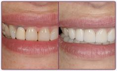 Porcelain Veneers      Porcelain Veneers are excellent technique Dr. Peck uses for correcting discolored, cracked or chipped teeth. He can also use them to make crooked teeth appear perfectly straight or short teeth longer. Because of their subtle color and near transparency, porcelain veneers can make a dramatic and very natural-looking improvement to your smile. Fred H. Peck - Cincinnati Dentists | Cincinnati Ohio Dentist | Cosmetic Dentist Cincinnati