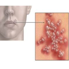 Herbal Remedies for Cold Sores