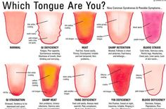Each individual's tongue is one of a kind, with particular qualities that mirror their inward wellbeing. Ever been to a TCM (Traditional Chinese Medicine) specialist or an acupuncturist and b…