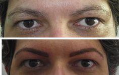 Na UTI da Sobrancelha fazemos um método de sobrancelha de definitiva que imita os pelos naturais :) O inchaço passa logo após o procedimento e a cor volta ao natural em dois dias!http://www.facebook.com/utidasobrancelha