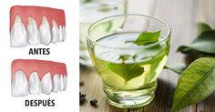 4 remedios naturales que le ayudarán a reparar la retracción de las encías #salud