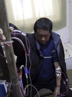 Sem dinheiro para ir ao hospital, Hu Songwen desenvolveu sua própria máquina de hemodiálise Foto: AP