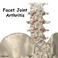 Lumbar facet joint degenerative arthritus