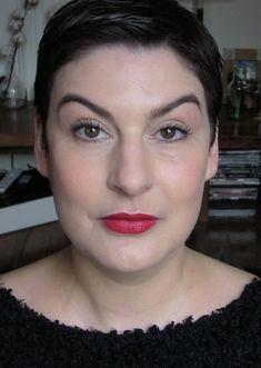 Botox et acide hyaluronique, mes dernières injections