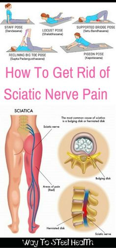Back pain treatment exercises for sciatica and lower back pain,nerve pain in leg sciatic nerve and sciatica treatment,sciatic nerve knee pain sciatic nerve physiotherapy. – Skin nd Beauty Fibromyalgia Pain Relief super nerve power Sciatica Pain Relief, Sciatic Pain, Sciatic Nerve Damage, Sciatica Massage, Yoga For Sciatica, Fitness Workouts, Fitness Hacks, Fat Workout, Douleur Nerf