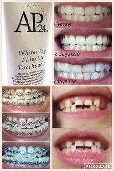 vaseline use skin care Nu Skin, Beauty Skin, Health And Beauty, Ap 24, Galvanic Spa, White Smile, White Teeth, Beauty Supply, Anti Aging Skin Care