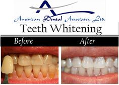 Know all about the teeth whitening and restores natural tooth color and bleaching whitens beyond the natural color. Schedule an appointment now at 773-284-164 or 773-868-920  American Dental Associates ltd, Dentist in Chicago.