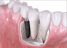 Dental Implants and Oral Surgery — Dental Implants are an amazing alternative to root canals or bridges and are the closest thing you will get to having your real teeth back in your mouth!